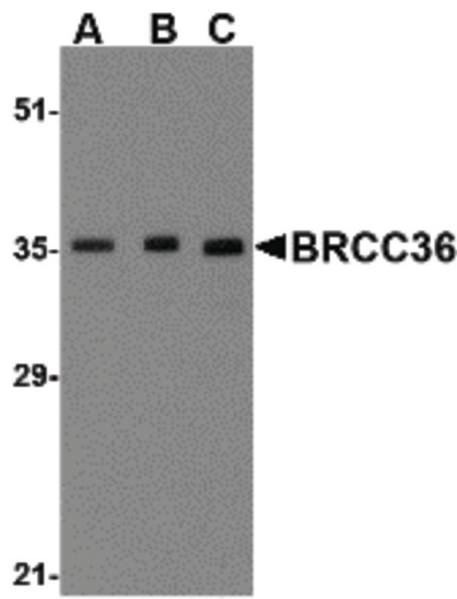 BRCC3 / BRCC36 Antibody - Western blot of BRCC36 in MCF7 cell lysate with BRCC36 antibody at (A) 0.5, (B) 1 and (C) 2 ug/ml.