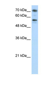 BRD7 Antibody - BRD7 antibody Western blot of Jurkat lysate. This image was taken for the unconjugated form of this product. Other forms have not been tested.