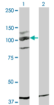 c-Kit / CD117 Antibody - Western blot of KIT expression in transfected 293T cell line by KIT monoclonal antibody, clone 5F6.