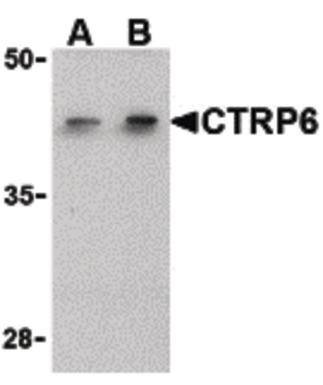 C1QTNF6 / CTRP6 Antibody - Western blot of CTRP6 in HeLa cell lysate with CTRP6 antibody at (A) 1 and (B) 2 ug/ml.