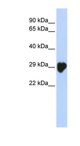 CA1 / Carbonic Anhydrase I antibody Western blot of Placenta lysate.  This image was taken for the unconjugated form of this product. Other forms have not been tested.