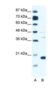 CACNG1 / CACNG Antibody - CACNG1 antibody Western blot of Jurkat lysate. This image was taken for the unconjugated form of this product. Other forms have not been tested.