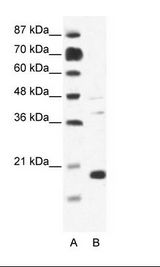 CACNG1 / CACNG Antibody - A: Marker, B: Jurkat Cell Lysate.  This image was taken for the unconjugated form of this product. Other forms have not been tested.