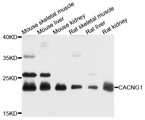 Western blot analysis of extracts of various cell lines, using CACNG1 antibody at 1:1000 dilution. The secondary antibody used was an HRP Goat Anti-Rabbit IgG (H+L) at 1:10000 dilution. Lysates were loaded 25ug per lane and 3% nonfat dry milk in TBST was used for blocking. An ECL Kit was used for detection and the exposure time was 10s.