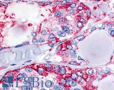 CALCR / Calcitonin Receptor Antibody - Anti-CALCR / Calcitonin Receptor antibody IHC of human Thyroid, Medullary Carcinoma. Immunohistochemistry of formalin-fixed, paraffin-embedded tissue after heat-induced antigen retrieval.