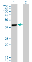 Western blot of CAMK1D expression in transfected 293T cell line by CAMK1D monoclonal antibody.