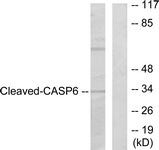 Western blot of extracts from 293 cells, treated with Etoposide 25 uM 60', using Caspase 6 (Cleaved-Asp162) Antibody. The lane on the right is treated with the synthesized peptide.