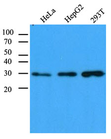 CBR / CBR1 Antibody - Cell lysates (40 ug) were resolved by SDS-PAGE, transferred to PVDF membrane and probed with anti-human CBR1 antibody (1:1000). Proteins were visualized using a goat anti-mouse secondary antibody conjugated to HRP and an ECL detection system.