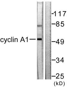 CCNA1 / Cyclin A1 Antibody - Western blot analysis of lysates from SKOV3 cells, using Cyclin A1 Antibody. The lane on the right is blocked with the synthesized peptide.