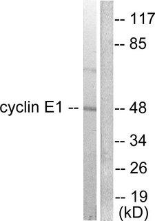 CCNE1 / Cyclin E1 Antibody - Western blot analysis of lysates from K562 cells, using Cyclin E1 Antibody. The lane on the right is blocked with the synthesized peptide.