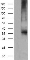 CD1C Antibody - HEK293T cells were transfected with the pCMV6-ENTRY control (Left lane) or pCMV6-ENTRY CD1C (Right lane) cDNA for 48 hrs and lysed. Equivalent amounts of cell lysates (5 ug per lane) were separated by SDS-PAGE and immunoblotted with anti-CD1C.