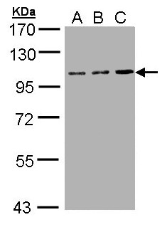 Sample (30 ug of whole cell lysate). A: Hep G2. B: Molt-4. C: Raji. 7.5% SDS PAGE. TFRC antibody diluted at 1:1000