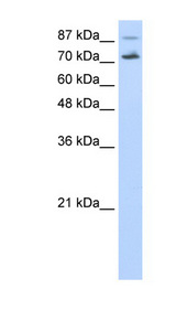 CDC25B Antibody - CDC25B antibody Western blot of HepG2 cell lysate. This image was taken for the unconjugated form of this product. Other forms have not been tested.