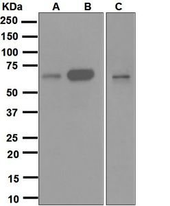 Western blot analysis on (A) K562, (B) U937, and (C) THP-1 cell lysates using anti-Cdc25B antibody.