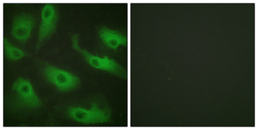 CDC37 Antibody - Immunofluorescence analysis of HeLa cells, using CDC37 Antibody. The picture on the right is blocked with the synthesized peptide.