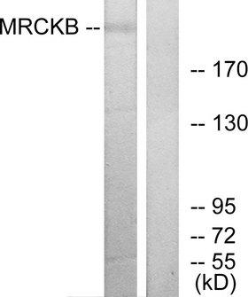 CDC42BPB / MRCKB Antibody - Western blot analysis of lysates from COLO cells, using MRCKB Antibody. The lane on the right is blocked with the synthesized peptide.