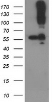 CDCP1 Antibody - HEK293T cells were transfected with the pCMV6-ENTRY control (Left lane) or pCMV6-ENTRY CDCP1 (Right lane) cDNA for 48 hrs and lysed. Equivalent amounts of cell lysates (5 ug per lane) were separated by SDS-PAGE and immunoblotted with anti-CDCP1.