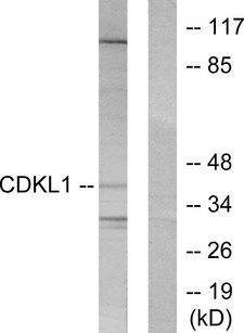 CDKL1 Antibody - Western blot analysis of lysates from COLO205 cells, using CDKL1 Antibody. The lane on the right is blocked with the synthesized peptide.