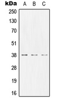 CEACAM8 / CD66b Antibody - Western blot analysis of CD66b expression in MCF7 (A); NIH3T3 (B); PC12 (C) whole cell lysates.