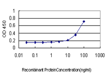 CHEK2 / CHK2 Antibody - Detection limit for recombinant GST tagged CHEK2 is approximately 3 ng/ml as a capture antibody.