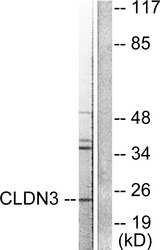 Western blot analysis of lysates from HUVEC cells, using Claudin 3 Antibody. The lane on the right is blocked with the synthesized peptide.