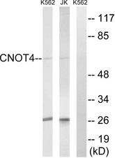 Western blot analysis of lysates from Jurkat and K562 cells, using CNOT4 Antibody. The lane on the right is blocked with the synthesized peptide.