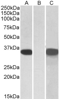 HEK293 lysate (10ug protein in RIPA buffer) overexpressing Human CRISP2 (RC205312) with C-terminal MYC tag probed with (1ug/ml) in Lane A and probed with anti-MYC Tag (1/1000) in lane C. Mock-transfected HEK293 probed (1mg/ml) in Lane
