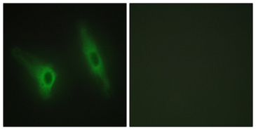 CSNK1E / CK1 Epsilon Antibody - Immunofluorescence analysis of HeLa cells, using CKI-epsilon Antibody. The picture on the right is blocked with the synthesized peptide.