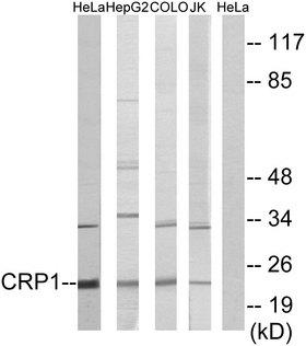 CSRP1 Antibody - Western blot analysis of lysates from HeLa, HepG2, COLO, and Jurkat cells, using CRP1 Antibody. The lane on the right is blocked with the synthesized peptide.