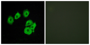 Immunofluorescence analysis of HUVEC cells, using CLTR1 Antibody. The picture on the right is blocked with the synthesized peptide.