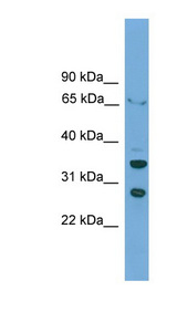 D-Binding Protein / DBP Antibody - DBP antibody Western blot of HepG2 cell lysate. This image was taken for the unconjugated form of this product. Other forms have not been tested.