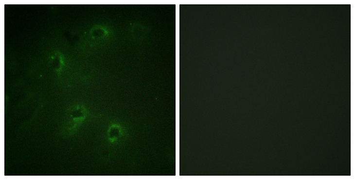 DAPK1 / DAP Kinase Antibody - Immunofluorescence analysis of COS7 cells, using DAPK1 Antibody. The picture on the right is blocked with the synthesized peptide.