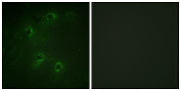 Immunofluorescence analysis of COS7 cells, using DAPK1 Antibody. The picture on the right is blocked with the synthesized peptide.