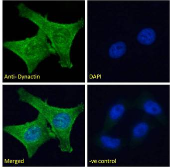 DCTN1 / Dynactin 1 antibody immunofluorescence analysis of paraformaldehyde fixed HeLa cells, permeabilized with 0.15% Triton. Primary incubation 1hr (10ug/ml) followed by Alexa Fluor 488 secondary antibody (2ug/ml), showing cytoplasmic staining. The nuclear stain is DAPI (blue). Negative control: Unimmunized goat IgG (10ug/ml) followed by Alexa Fluor 488 secondary antibody (2ug/ml).