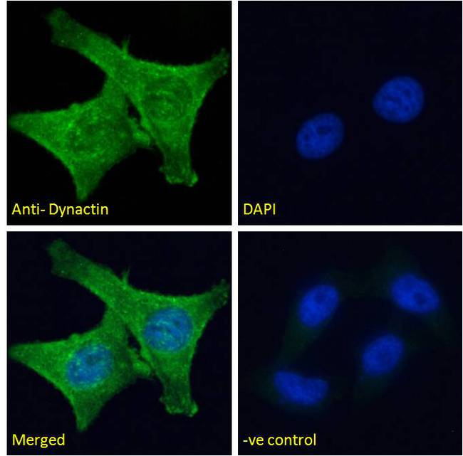 DCTN1 / Dynactin 1 Antibody - DCTN1 / Dynactin 1 antibody immunofluorescence analysis of paraformaldehyde fixed HeLa cells, permeabilized with 0.15% Triton. Primary incubation 1hr (10ug/ml) followed by Alexa Fluor 488 secondary antibody (2ug/ml), showing cytoplasmic staining. The nuclear stain is DAPI (blue). Negative control: Unimmunized goat IgG (10ug/ml) followed by Alexa Fluor 488 secondary antibody (2ug/ml).