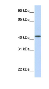 DENND1B antibody Western blot of Fetal Muscle lysate. This image was taken for the unconjugated form of this product. Other forms have not been tested.