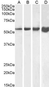 DES / Desmin Antibody - Goat Anti-Desmin Antibody (1µg/ml) staining of Human (A), Mouse (B), Rat (C) and Pig (D) Skeletal Muscle lysate (35µg protein in RIPA buffer). Primary incubation was 1 hour. Detected by chemiluminescencence.