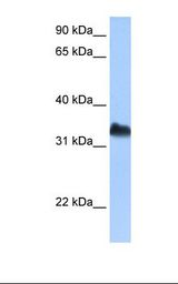 DND1 Antibody - Jurkat cell lysate. Antibody concentration: 0.5 ug/ml. Gel concentration: 12%.  This image was taken for the unconjugated form of this product. Other forms have not been tested.