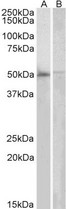 DOK3 antibody (2µg/ml) staining of Human Bone Marrow (A) and PBL (B) lysates (35µg protein in RIPA buffer). Primary incubation was 1 hour. Detected by chemiluminescence.