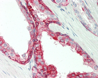 Human Prostate: Formalin-Fixed, Paraffin-Embedded (FFPE).  This image was taken for the unconjugated form of this product. Other forms have not been tested.
