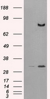 DPP4 / CD26 Antibody - HEK293T cells were transfected with the pCMV6-ENTRY control (Left lane) or pCMV6-ENTRY DPP4 (Right lane) cDNA for 48 hrs and lysed. Equivalent amounts of cell lysates (5 ug per lane) were separated by SDS-PAGE and immunoblotted with anti-DPP4.