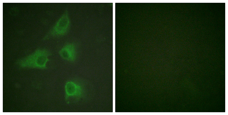 DPYSL2 / CRMP2 Antibody - Immunofluorescence analysis of HeLa cells, using DRP-2 Antibody. The picture on the right is blocked with the synthesized peptide.