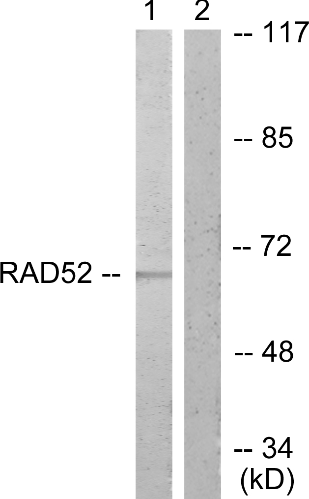 DPYSL2 / CRMP2 Antibody - Western blot analysis of lysates from A549 cells, treated with EGF 200ng/ml 30', using DRP-2 Antibody. The lane on the right is blocked with the synthesized peptide.