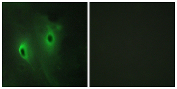 Immunofluorescence analysis of HeLa cells, using DUSP9 Antibody. The picture on the right is blocked with the synthesized peptide.