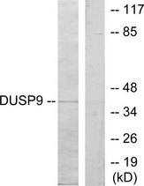 Western blot analysis of lysates from HeLa cells, using DUSP9 Antibody. The lane on the right is blocked with the synthesized peptide.
