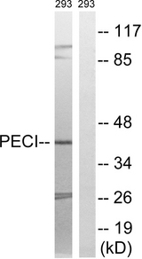 ECI2 / PECI Antibody - Western blot analysis of lysates from 293 cells, using PECI Antibody. The lane on the right is blocked with the synthesized peptide.