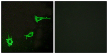 EDNRA / Endothelin A Receptor Antibody - Immunofluorescence analysis of LOVO cells, using EDNRA Antibody. The picture on the right is blocked with the synthesized peptide.