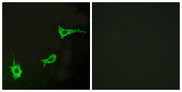 Immunofluorescence analysis of LOVO cells, using EDNRA Antibody. The picture on the right is blocked with the synthesized peptide.