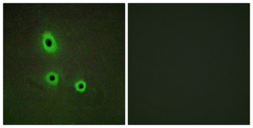 Immunofluorescence analysis of A549 cells, using EFNA5 Antibody. The picture on the right is blocked with the synthesized peptide.