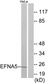 Western blot analysis of lysates from HeLa cells, using EFNA5 Antibody. The lane on the right is blocked with the synthesized peptide.